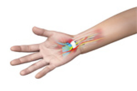 Is Your Hand Pain Caused by Carpal Tunnel Syndrome?