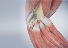 Surgery for Golfer's Elbow